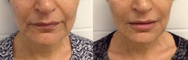 הזרקת הבוטוקס בצידי פנים