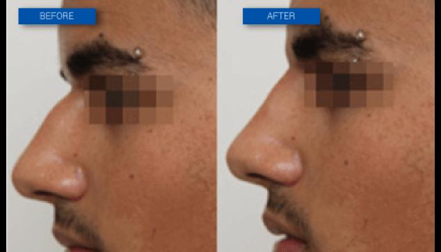 שיפור בצורת האף ללא ניתוח